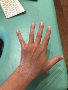 アトピー後の左手