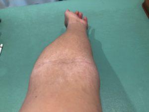 アトピー 後の左肘